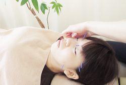 美容鍼(びようばり)
